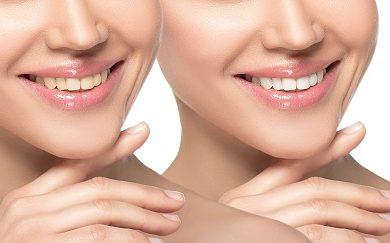 3 Teeth Whitening Tips To Achieve Maximum Results